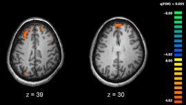 Schizophrenia fMRI